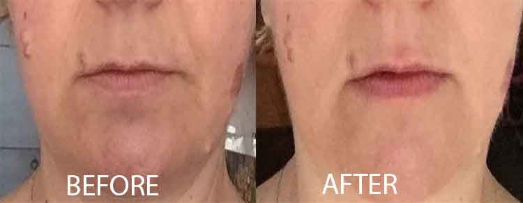 Monica before and after myfaceGYM