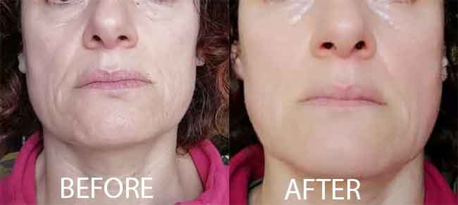 Sabrina before and after my faceGYM method